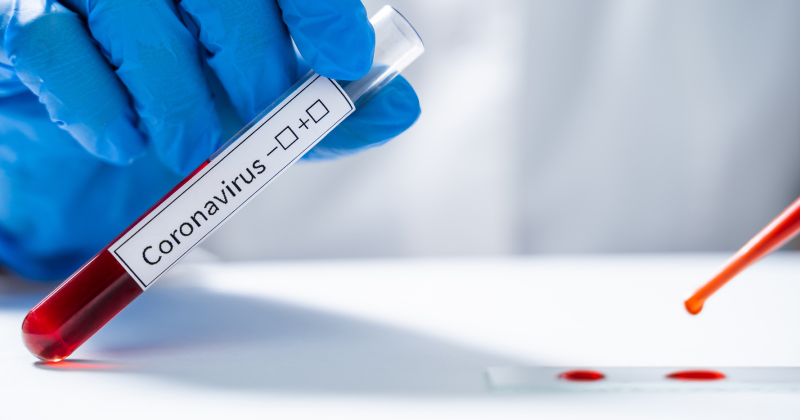 Ultime notizie Coronavirus Covid-19: la bozza del DPCM 22 marzo 2020 che chiude l'Italia - Studi professionali aperti