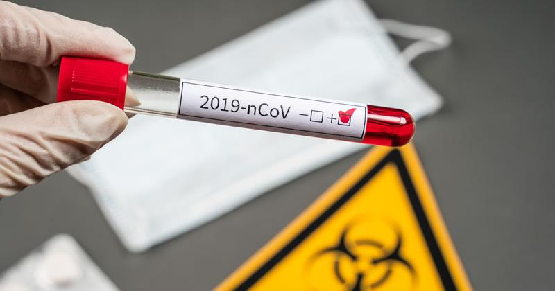 Coronavirus Covid-19: le misure a sostegno di lavoratori autonomi e professionisti
