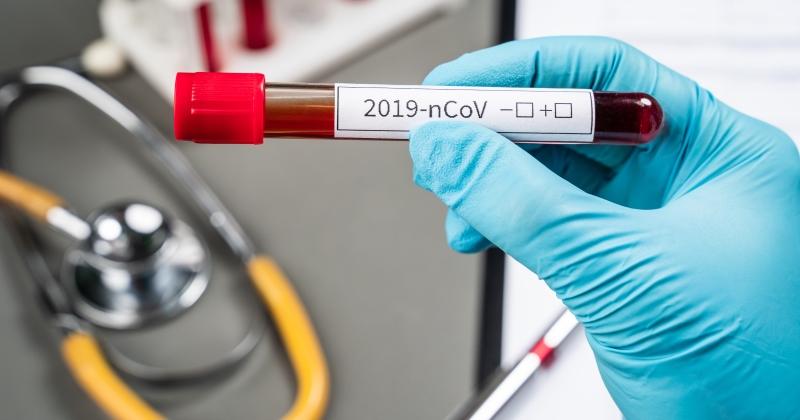 Coronavirus Covid-19: In Gazzetta un nuovo decreto-legge con misure urgenti per famiglie, lavoratori e imprese